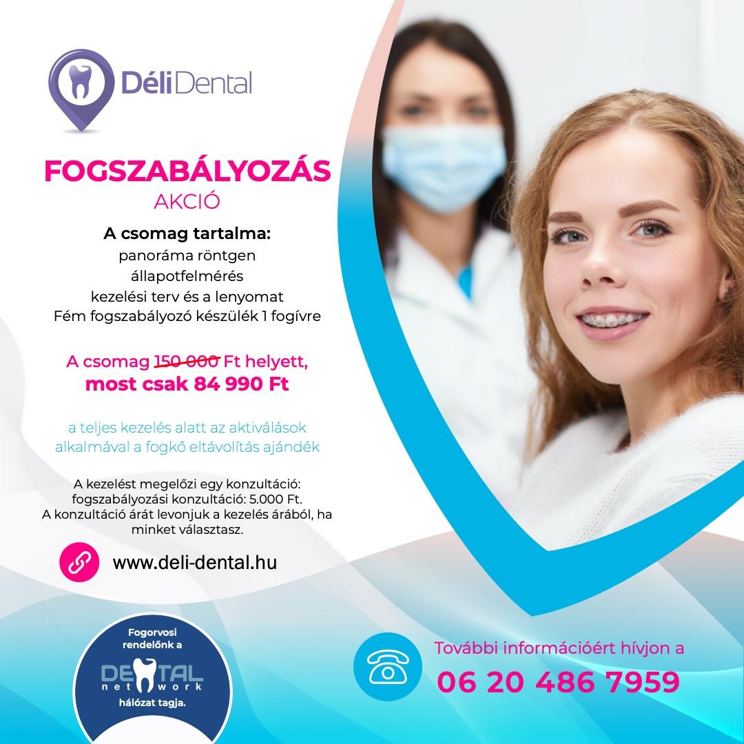 Déli Dental Fogászat - Fogszabályozás akció