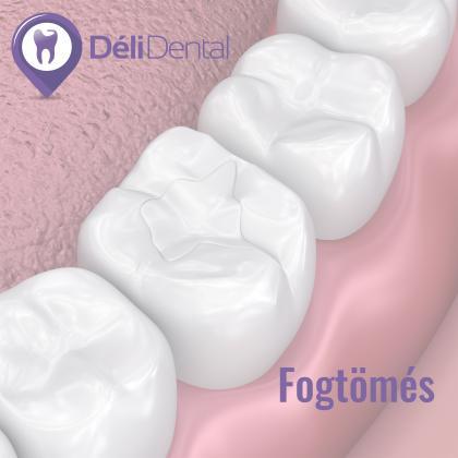 Konzerváló fogászati kezelések